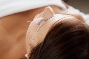 Facial Acupuncture at Woolpit Complementary
