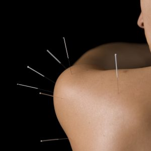 Acupuncture - Shoulder