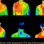 Fibromayalgia and CFS Medical Thermography